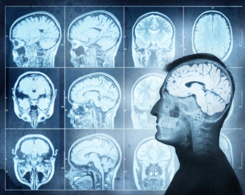 Radiology Treatments for Neurological Disorders