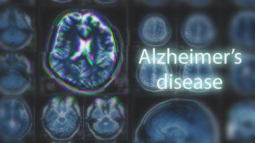 Treatment for Alzheimer's Disease